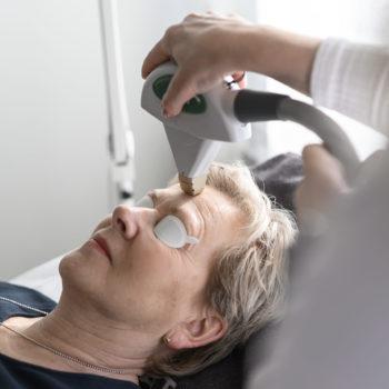 Laserbehandling i ansikte