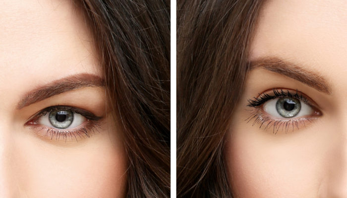 Upper blepharoplasty.Correcting the aging process